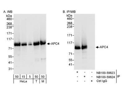 Rabbit Polyclonal Apc4 Antibody