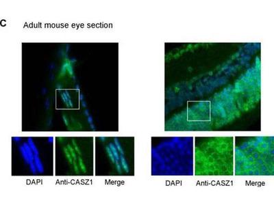 anti-CASZ1 (castor zinc finger 1) antibody