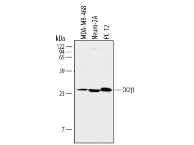 Casein Kinase 2 beta Antibody