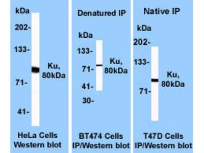 anti-XRCC5 antibody