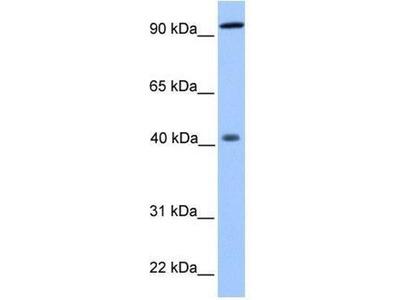 anti-PYGO1 antibody