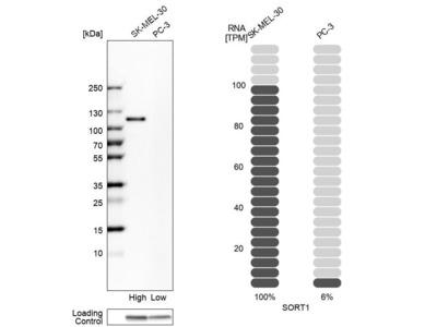 Anti-SORT1 Antibody