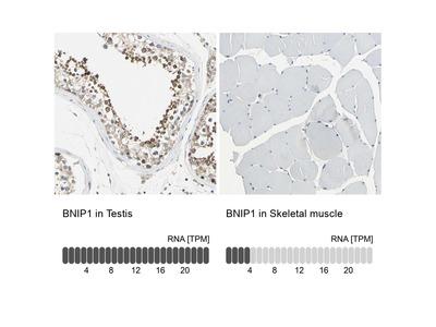 Anti-BNIP1 Antibody