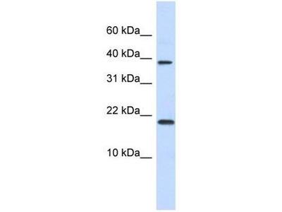 anti-chromatin accessibility complex 1 Antibody