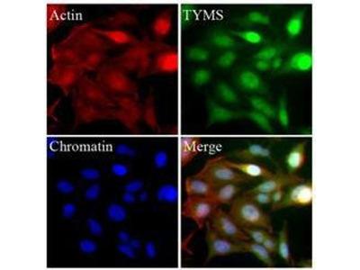 anti-TYMS Antibody