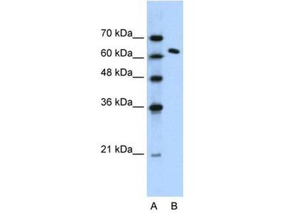 anti-SPT16 (SUPT16H) antibody