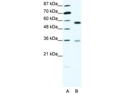 anti-GDP Dissociation Inhibitor 1 (GDI1) (C-Term) antibody