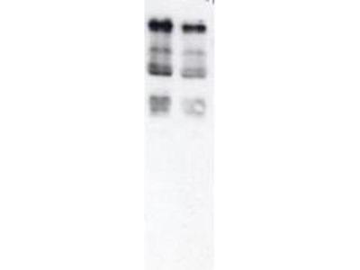 anti-Ubiquitin (Ubi-p63E) antibody