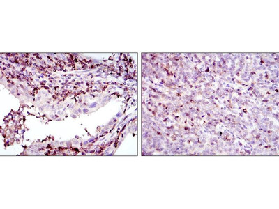 anti-Adrenergic, Beta, Receptor Kinase 1 (ADRB1) antibody