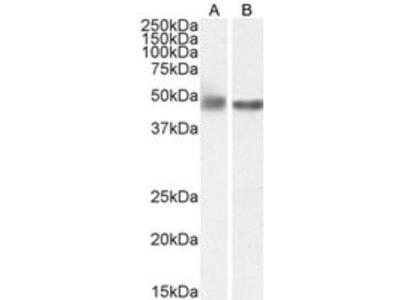 Goat Polyclonal GFAP Antibody