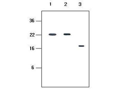 anti-KIR2D antibody
