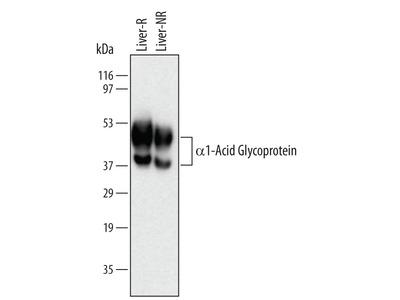 alpha 1-Acid Glycoprotein Antibody