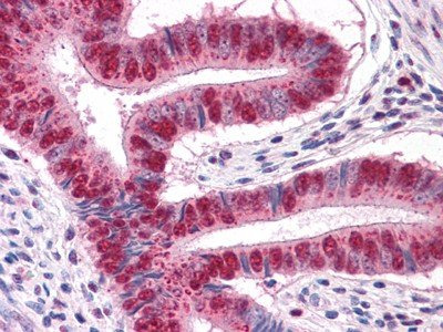 anti-MUM1 antibody