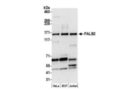 PALB2 Antibody