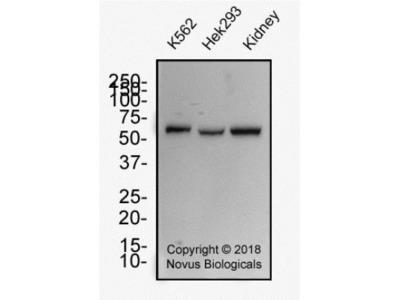 Mouse Monoclonal WT1 Antibody