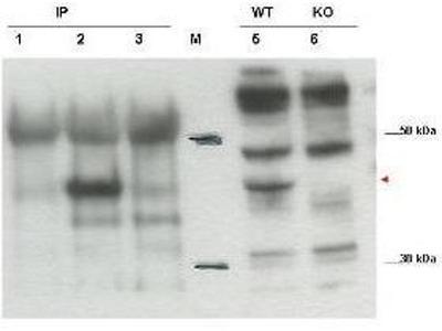 anti-cytohesin 1 (CYTIP) antibody