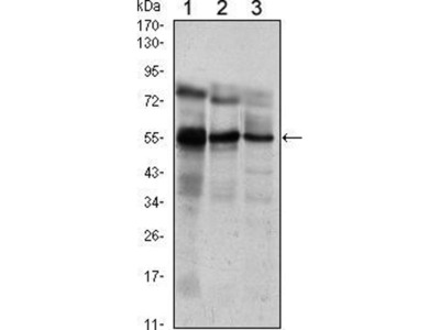 anti-ETV5 antibody