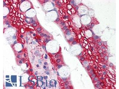 TLR1 Antibody