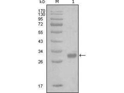 anti-F2R antibody