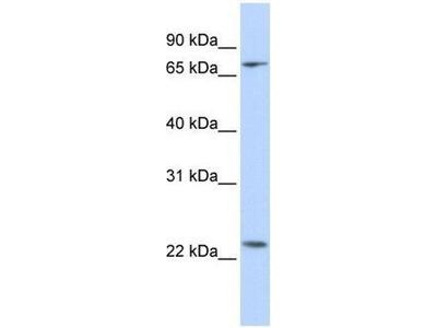 anti-Zfp185 (ZNF185) antibody