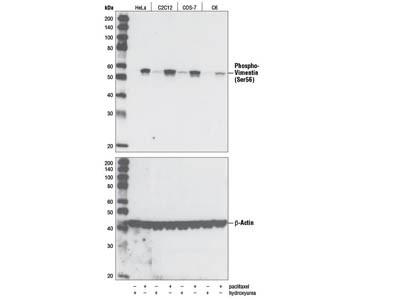 Phospho-Vimentin (Ser56) Antibody