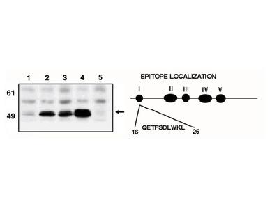 anti-p53 (tumor protein p53) antibody