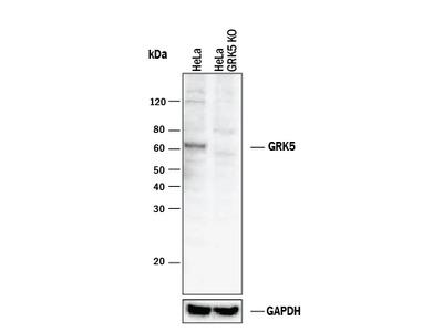 GRK5 Antibody