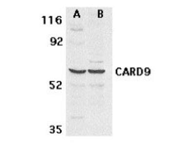 anti-CARD9 antibody