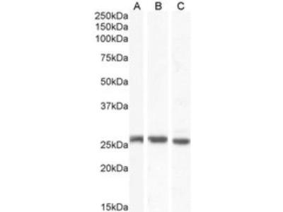 Goat Polyclonal Connexin 26 / GJB2 Antibody