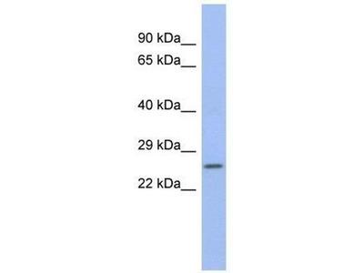 anti-ZNRF1 antibody
