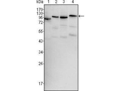 anti-BRAF (SNRPE) antibody