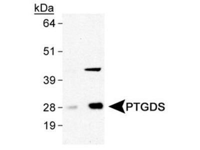 PTGDS Polyclonal Antibody