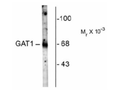GAT-1 / SLC6A1 Antibody