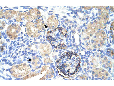 CLIC5 antibody - C-terminal region (ARP35263_T100)