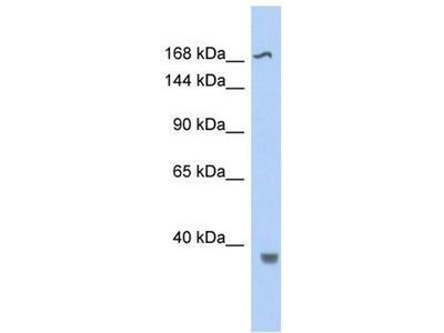 anti-Topoisomerase (DNA) II beta 180kDa (TOP2B) (Middle Region) antibody
