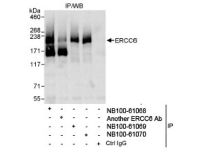 CSB Antibody