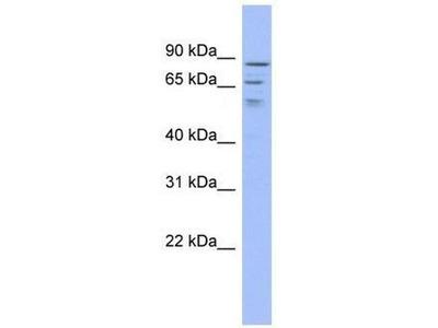 anti-TRMT1L antibody