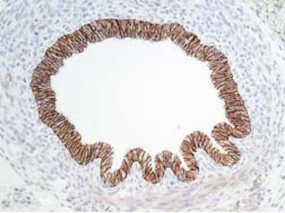 E-Cadherin (Cytoplasmic) Antibody