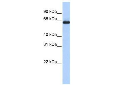 anti-SLC34A3 antibody