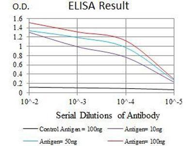 anti-DKK3 antibody