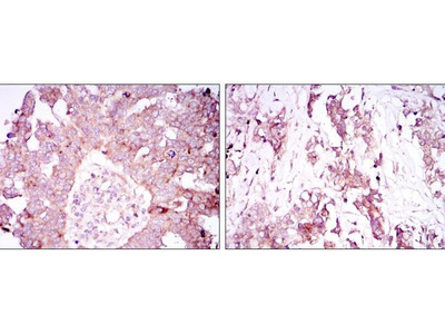anti-ATXN1 (Ataxin 1) antibody