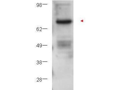 anti-PRKCB (PKC beta) antibody