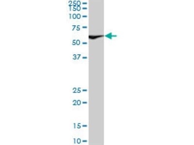 anti-XRCC6 antibody