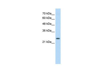 TSHR antibody - C-terminal region (ARP41871_P050)