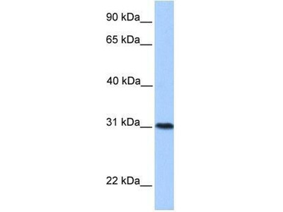 anti-HELT antibody