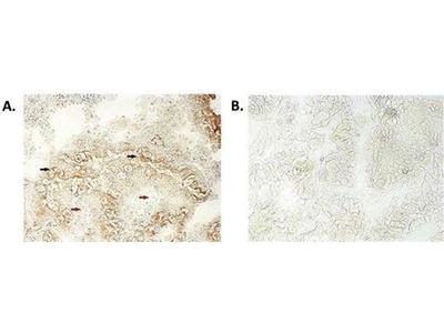 anti-NLRP6 antibody