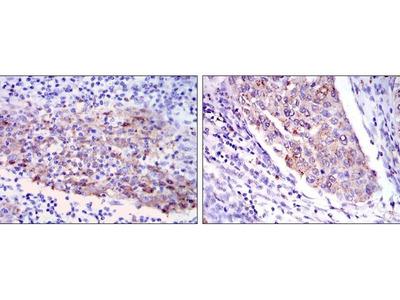 anti-MMP1 antibody