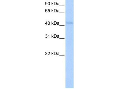 anti-Kelch-Like Family Member 42 (KLHL42) (N-Term) antibody