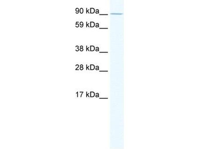 anti-E2F7 antibody