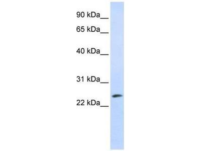 anti-TP53INP1 (Trp53inp1) antibody